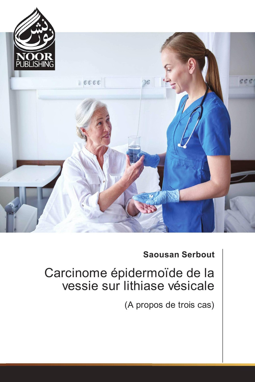 Carcinome épidermoïde de la vessie sur lithiase vésicale