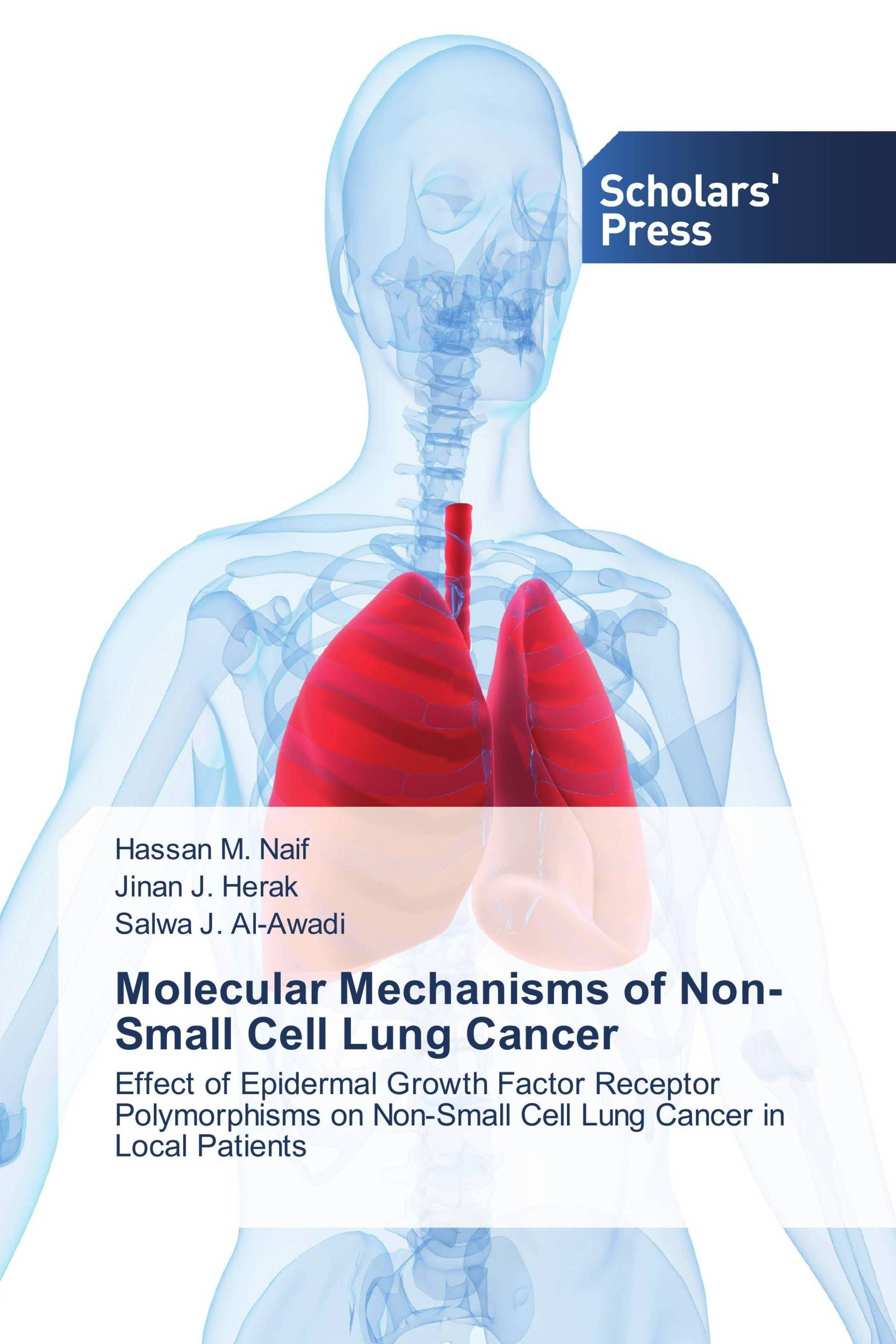 Molecular Mechanisms of Non-Small Cell Lung Cancer / 978-3-639-70473 ...
