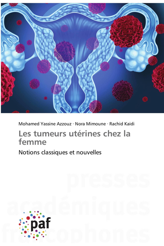Les tumeurs utérines chez la femme