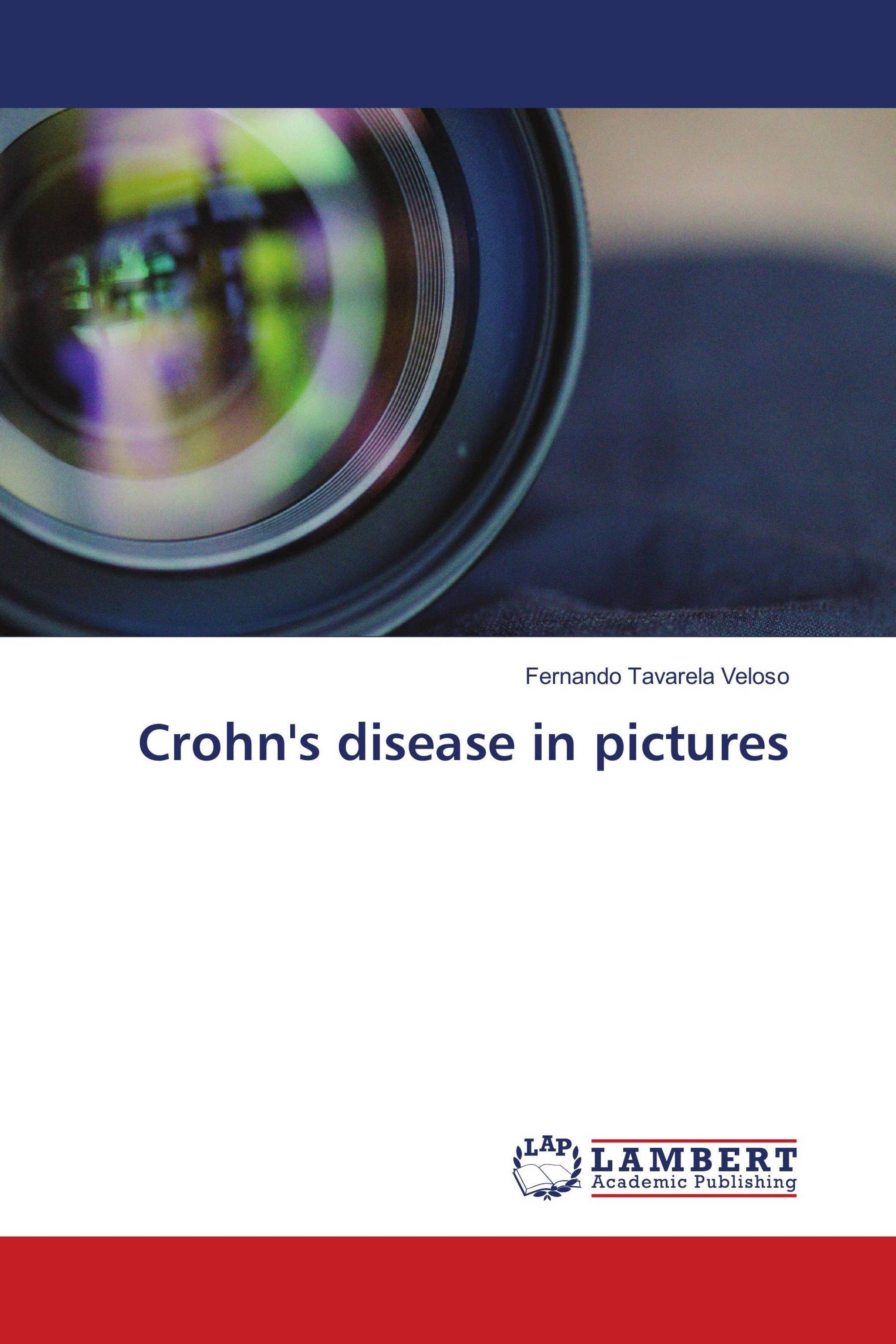Crohn's disease in pictures