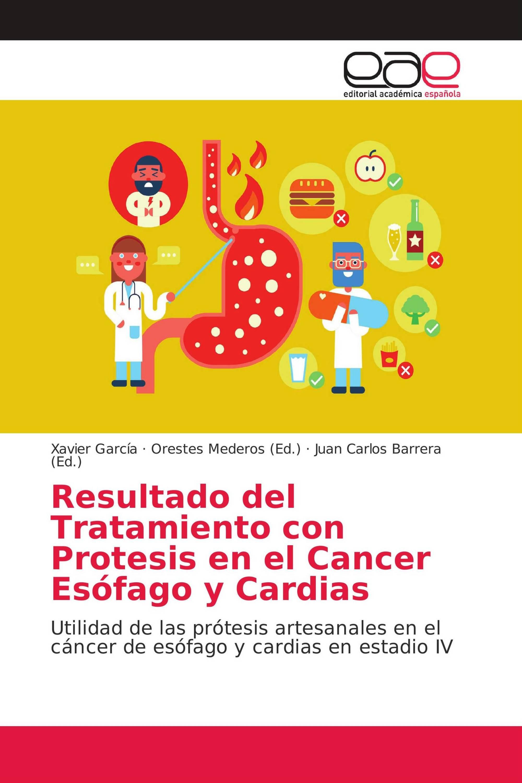 Resultado del Tratamiento con Protesis en el Cancer Esófago y Cardias