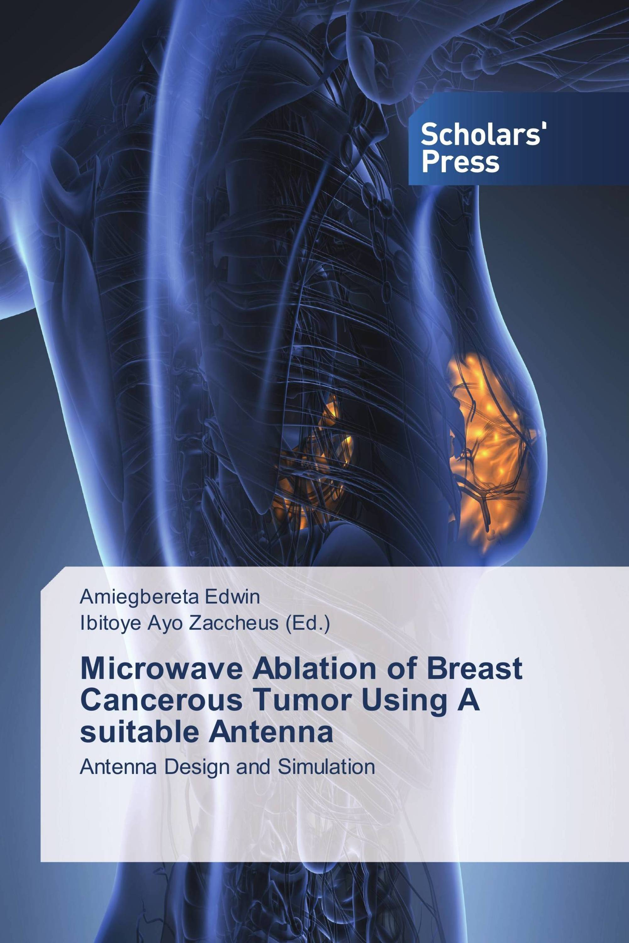 Microwave Ablation Of T Cancerous Tumor Using A Suitable Antenna