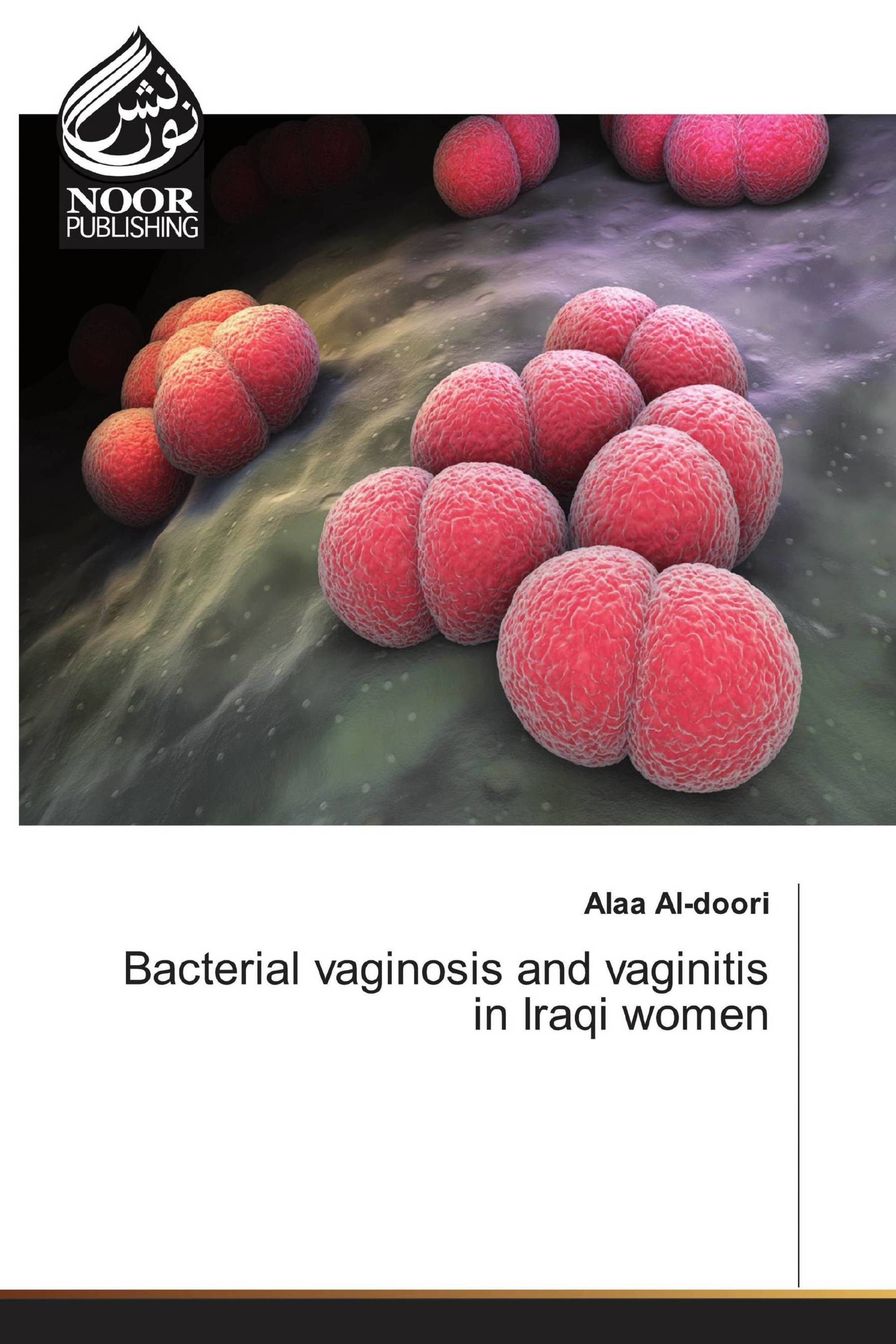 Bacterial vaginosis and vaginitis in Iraqi women
