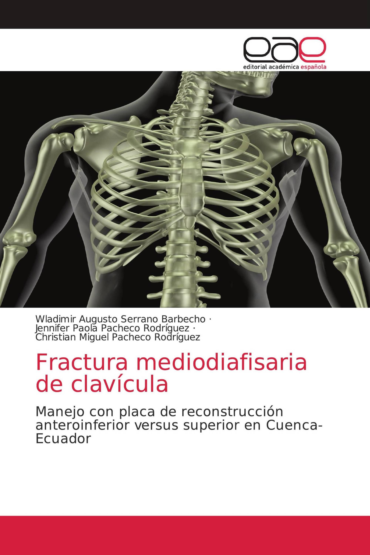 Fractura mediodiafisaria de clavícula
