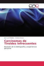 Carcinomas de Tiroides Infrecuentes