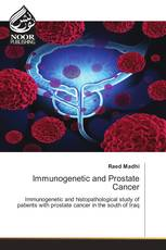 Immunogenetic and Prostate Cancer