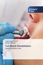 Full Mouth Rehablitation