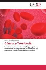 Cáncer y Trombosis