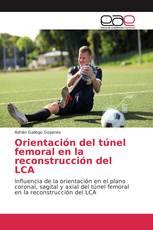 Orientación del túnel femoral en la reconstrucción del LCA