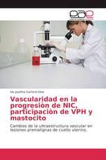 Vascularidad en la progresión de NIC, participación de VPH y mastocito