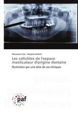 Les cellulites de l'espace masticateur d'origine dentaire