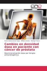 Cambios en densidad ósea en paciente con cáncer de próstata