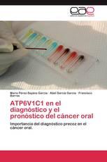 ATP6V1C1 en el diagnóstico y el pronóstico del cáncer oral