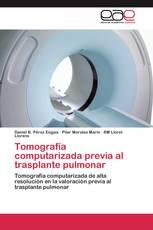 Tomografía computarizada previa al trasplante pulmonar