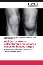 Aloinjertos óseos estructurales en tumores óseos de huesos largos