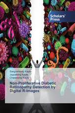 Non-Proliferative Diabetic Retinopathy Detection by Digital R-Images