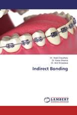 Indirect Bonding