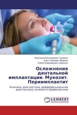 Осложнения дентальной имплантации. Мукозит. Периимплантит