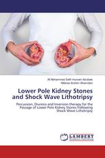 Lower Pole Kidney Stones and Shock Wave Lithotripsy