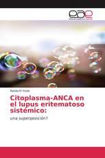 Citoplasma-ANCA en el lupus eritematoso sistémico: