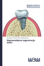 Naprowadzana regeneracja kości