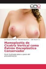 Mamoplastia de Cicatriz Vertical como Patrón Oncoplástico Conservador