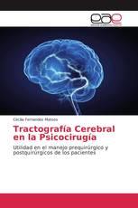Tractografía Cerebral en la Psicocirugía