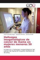 Hallazgos imagenológicos de cáncer de mama en mujeres menores 50 años