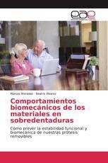 Comportamientos biomecánicos de los materiales en sobredentaduras