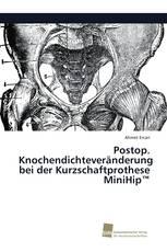 Postop. Knochendichteveränderung bei der Kurzschaftprothese MiniHip™