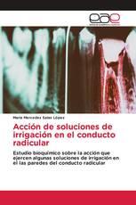 Acción de soluciones de irrigación en el conducto radicular