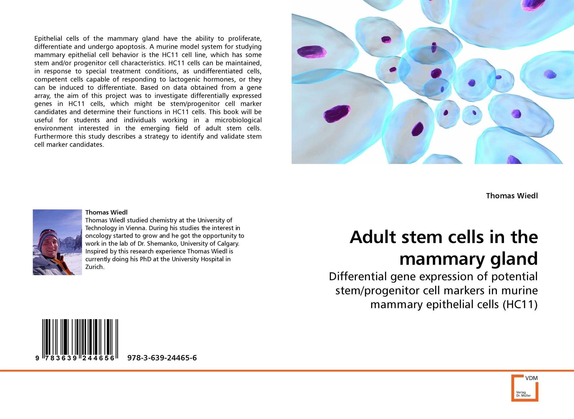Multilineage potential of adult human mesenchymal stem  nude photo
