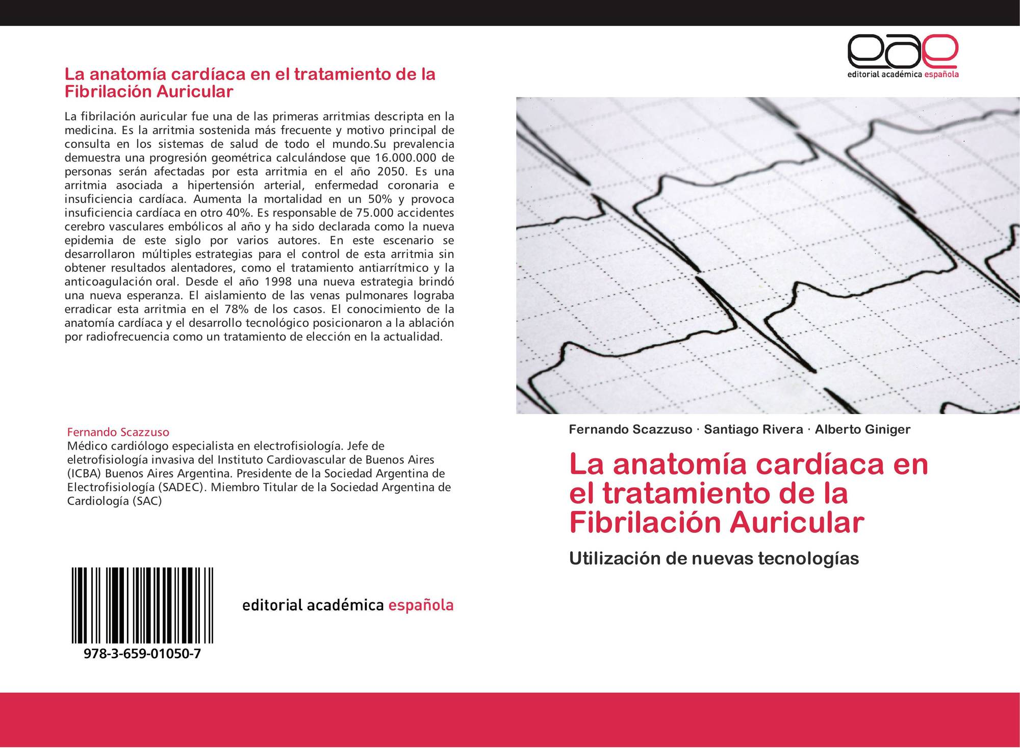 La anatomía cardíaca en el tratamiento de la Fibrilación Auricular ...