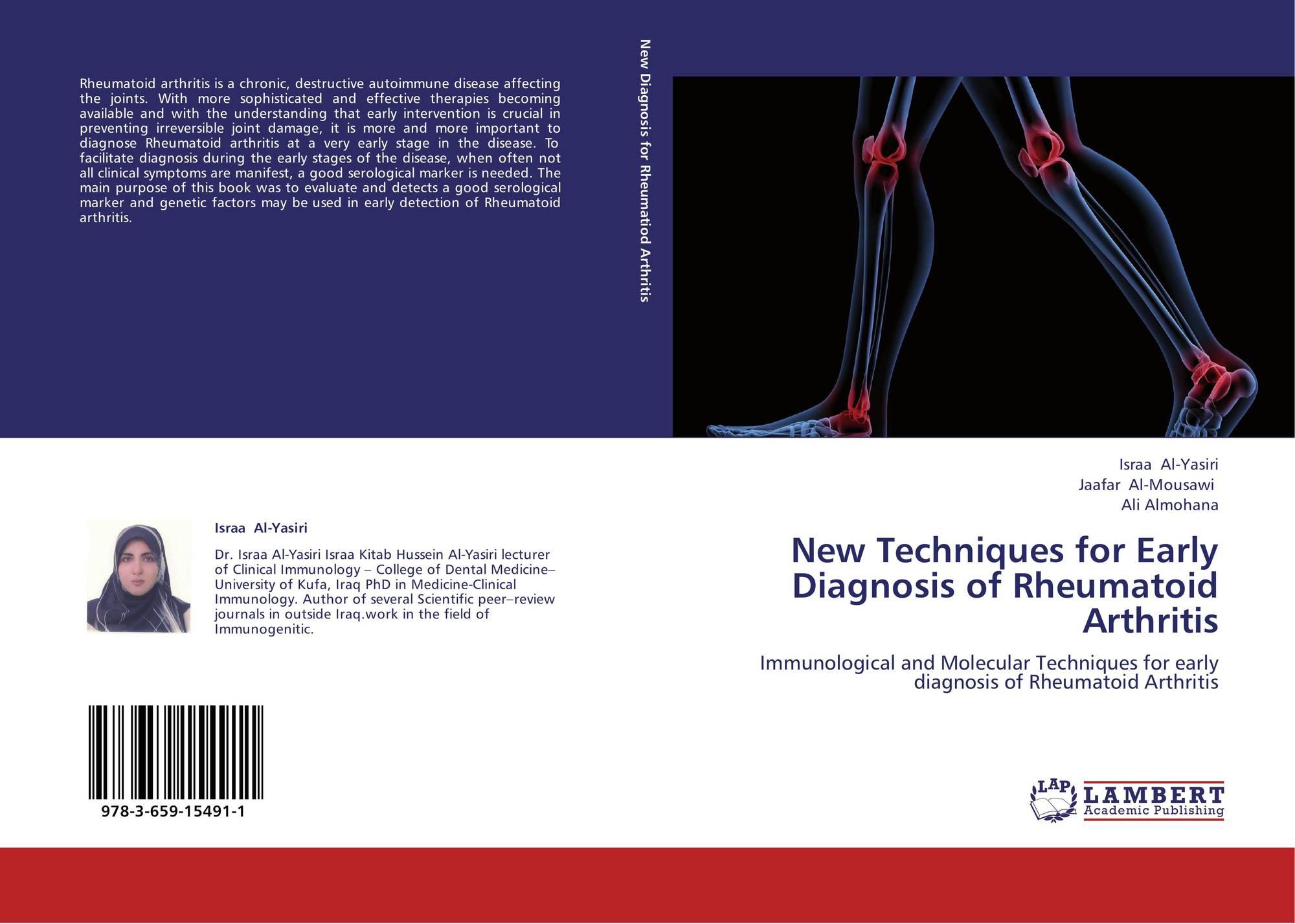 rheumatoid arthritis thesis