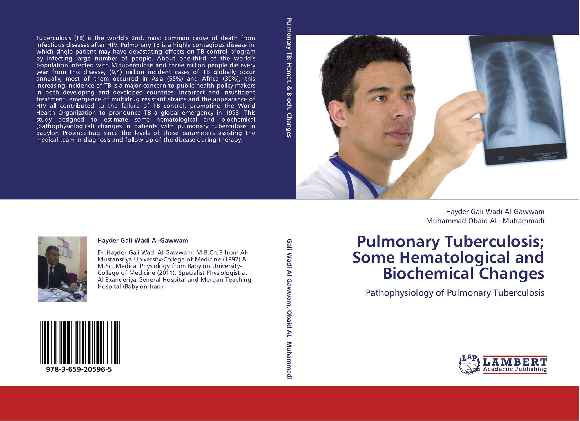 pulmonary tuberculosis thesis Tuberculosis tuberculosis is an airborne infectious disease caused by different strains of mycobacterium commonly referred to as mycobacterium tuberculosis.
