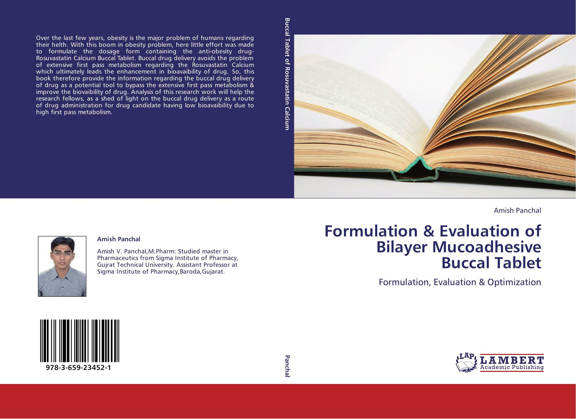 thesis on mucoadhesive buccal tablet Design and development of buccal mucoadhesive tablets of metoprolol succinate by using cashewnut tree gum the buccal tablet was hydrated from one.