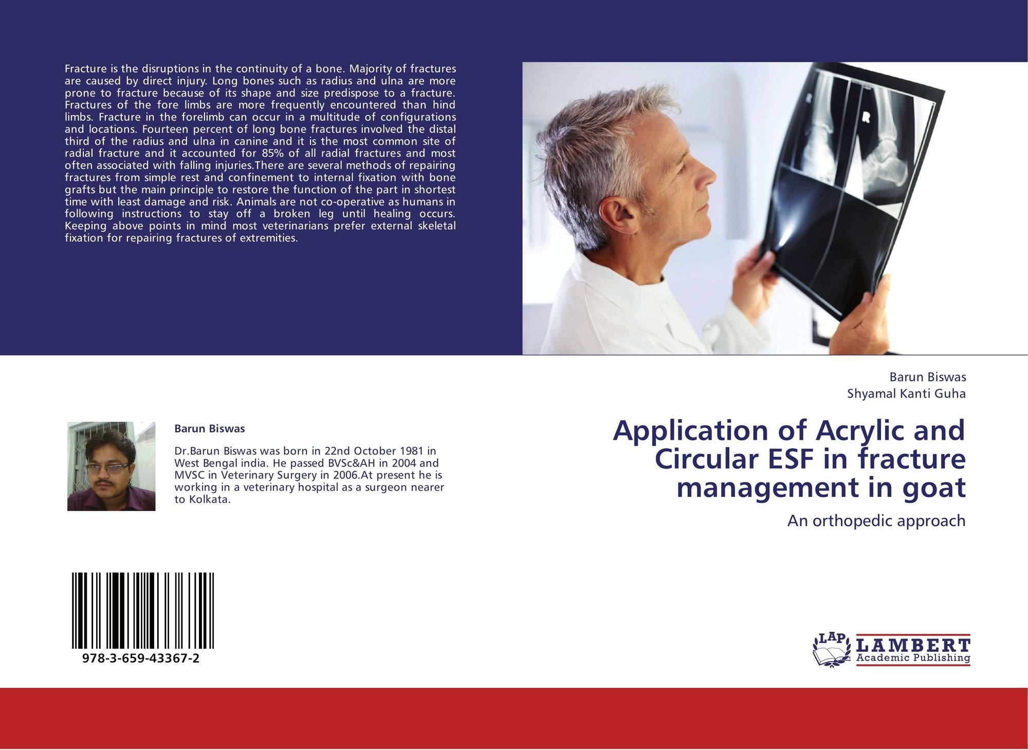 Application of Acrylic and Circular ESF in fracture management in