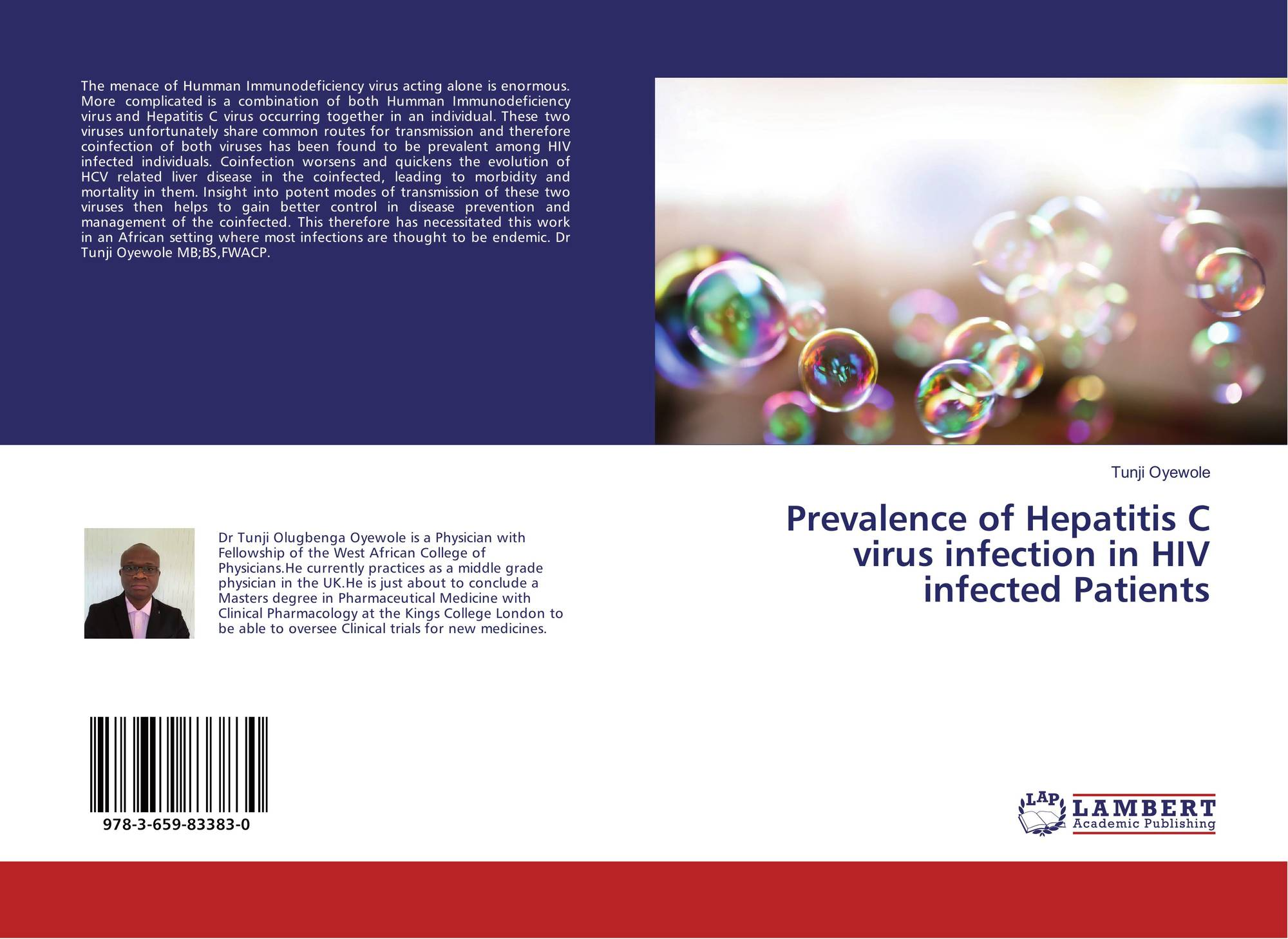 hepatitis e virus infection in hiv infected persons Infection with hepatitis e virus (hev) can cause rapid liver fibrosis in people with  hiv who have low cd4 cell counts, case reports published in.