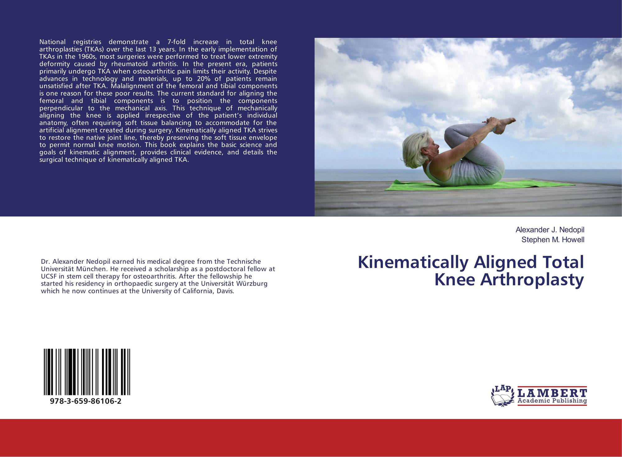 Kinematically Aligned Total Knee Arthroplasty, 978-3-659