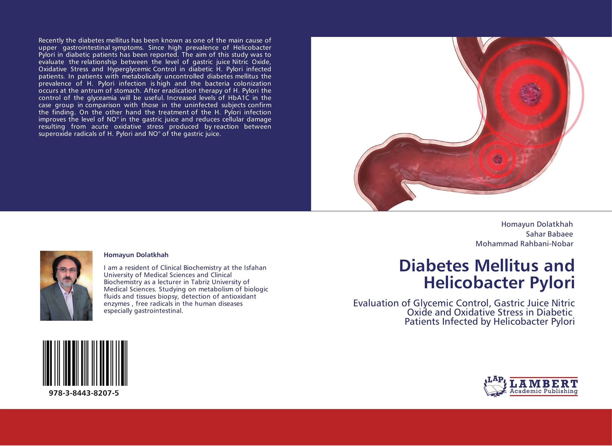 case-control study of diabetes mellitus in hiv-infected patients