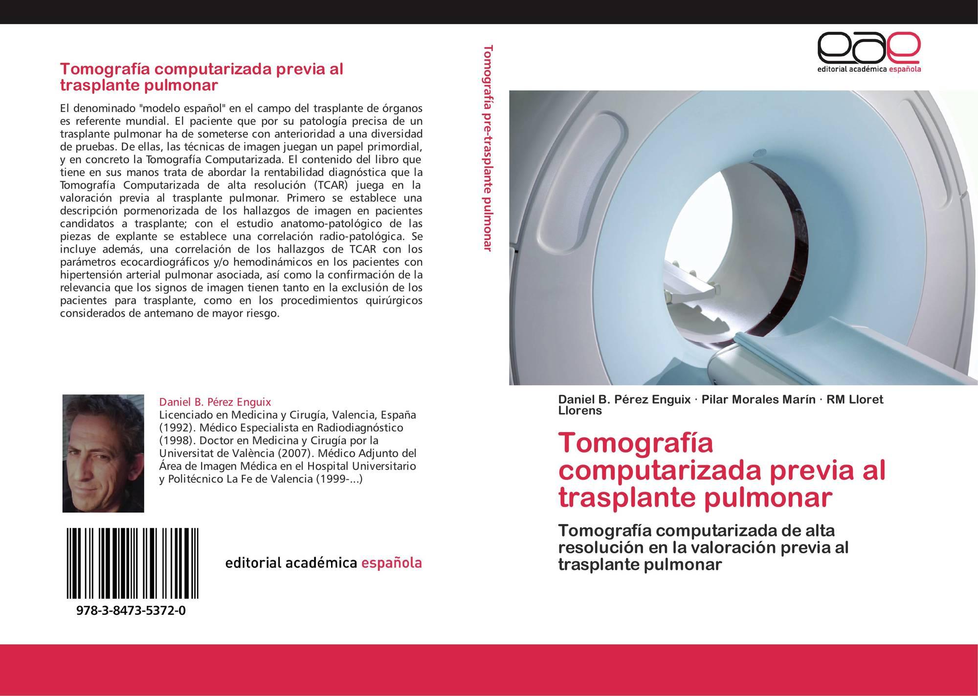 Hipertensión pulmonar en tomografía computarizada