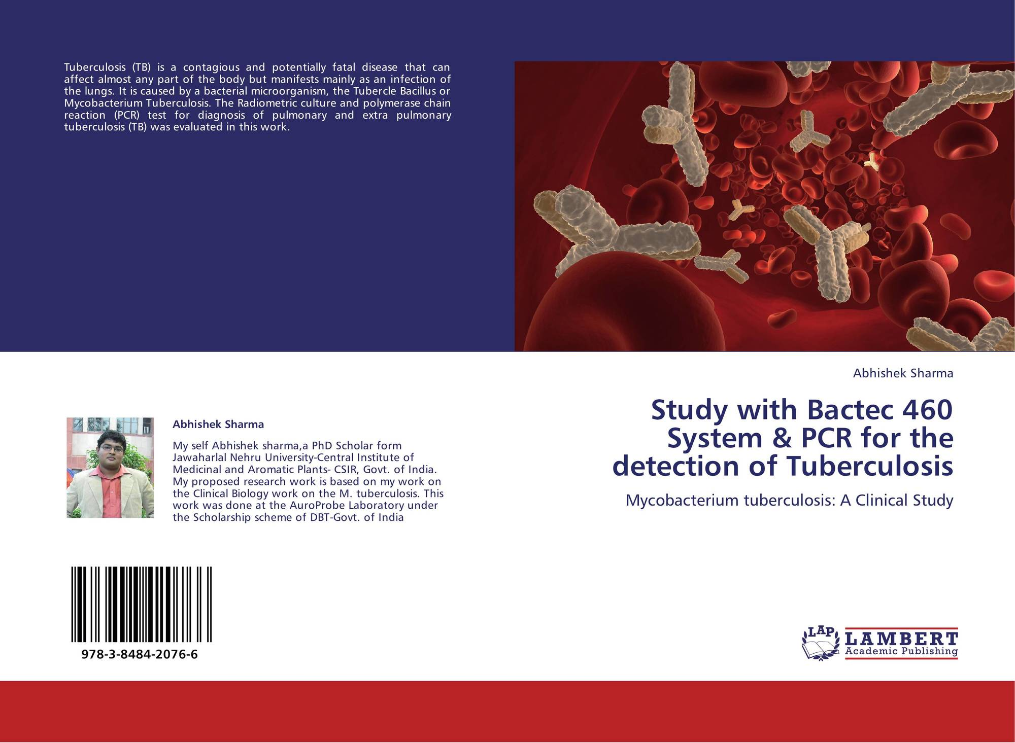 tuberculosis thesis Pulmonary tuberculosis so eliminating tuberculosis transmission is an important obstacle to decreasing the overall rates of the disease have been implicated in the high rates of tuberculosis this thesis examines and compares the social determinants of tuberculosis transmission among.