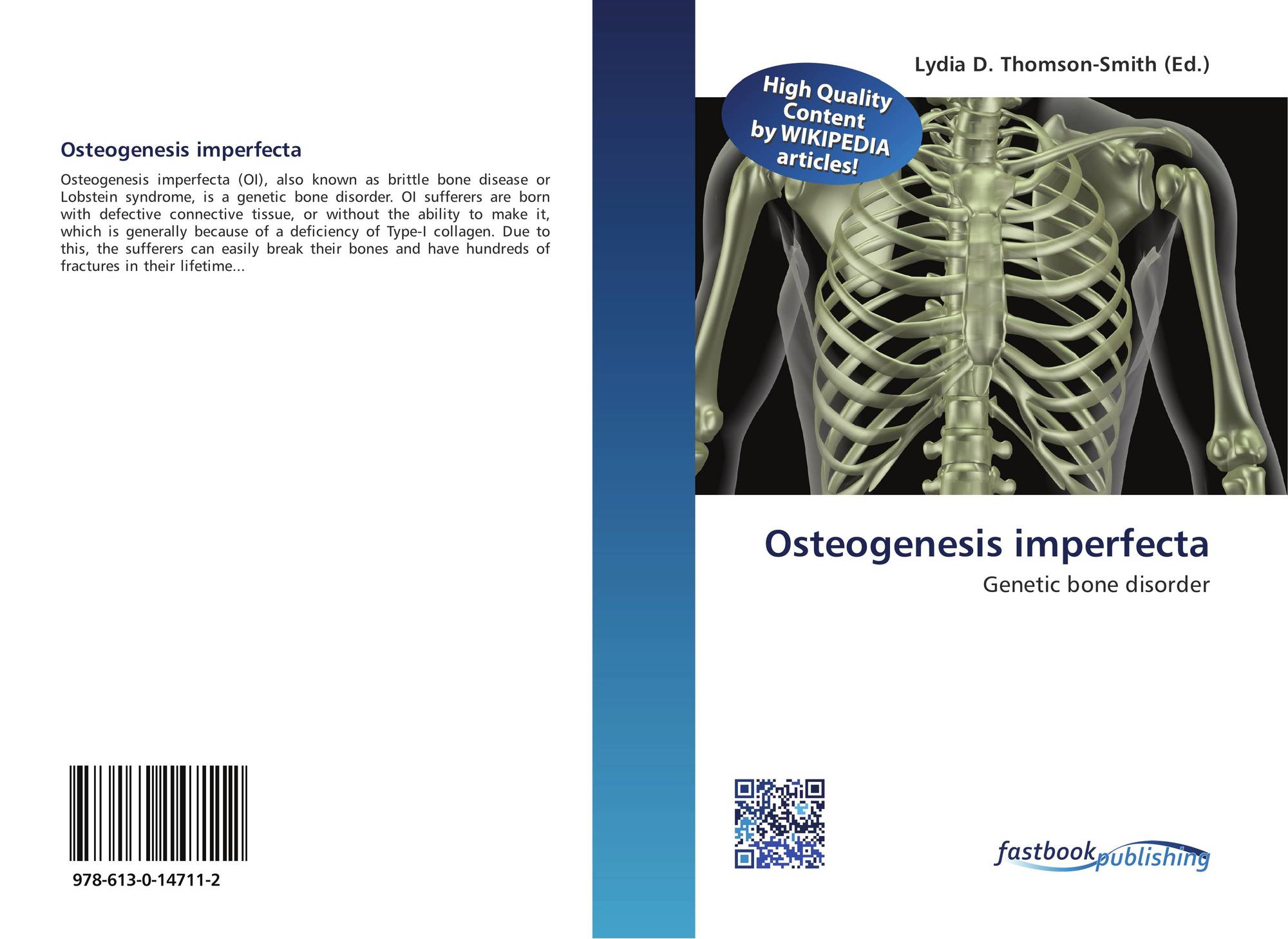 an in dept overview of the osteogenesi imperfecta oi genetic disorder Osteogenesis imperfecta - an overview akku sara jacob1 2reader, dept of oral pathology generalized connective tissue disorder characterized by severe.