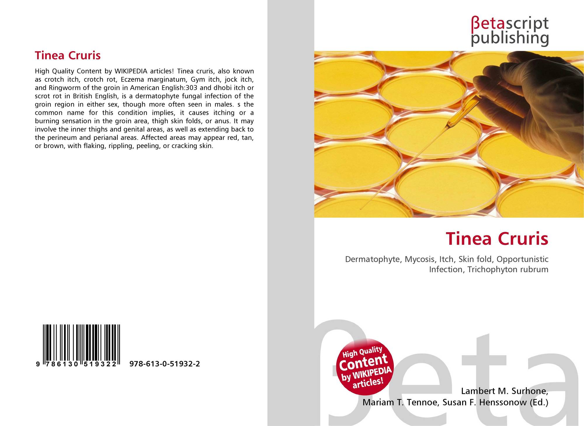 Tinea Cruris, 978-613-0-51932-2, 613051932X ,9786130519322