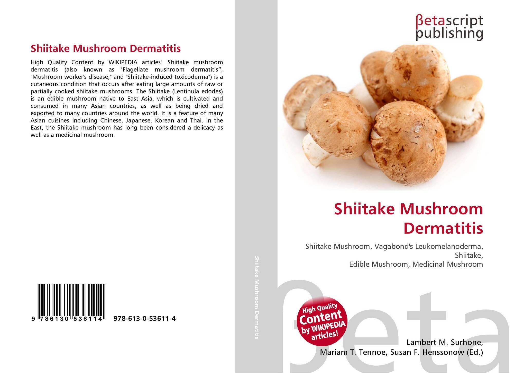 Shiitake Mushroom Dermatitis, 978-613-0-53611-4, 6130536119