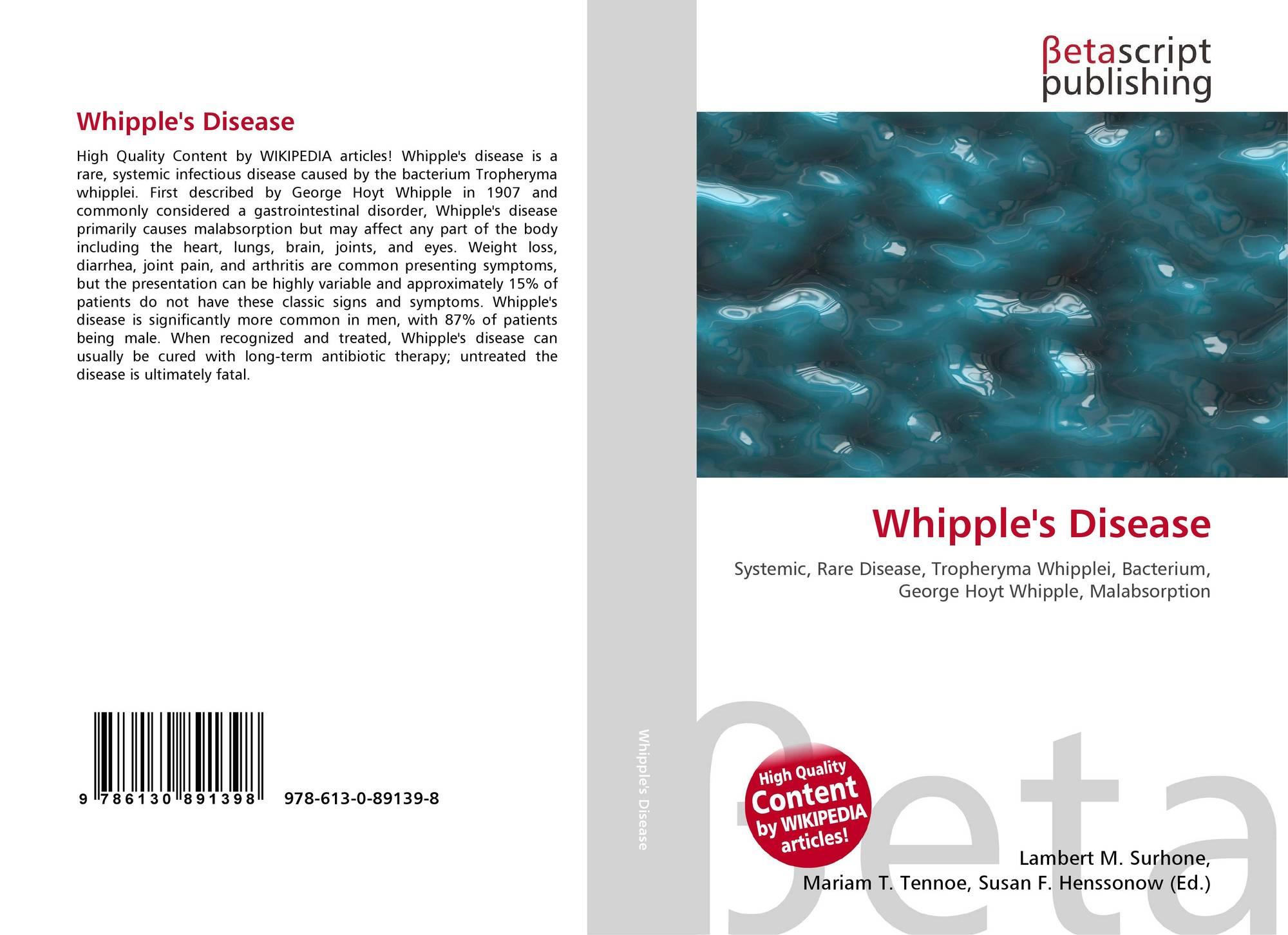 Whipple's Disease, 15 15 15 15 15, 1515153 ,1515151515에 대한 갤러리