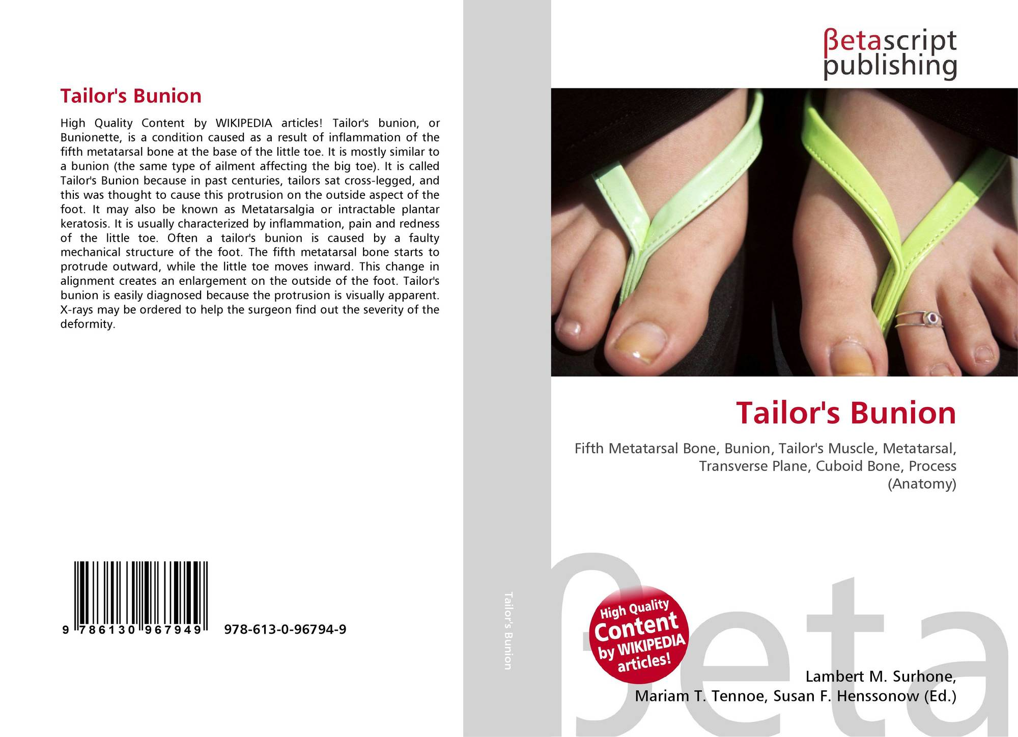 Tailor\'s Bunion, 978-613-0-96794-9, 6130967942 ,9786130967949