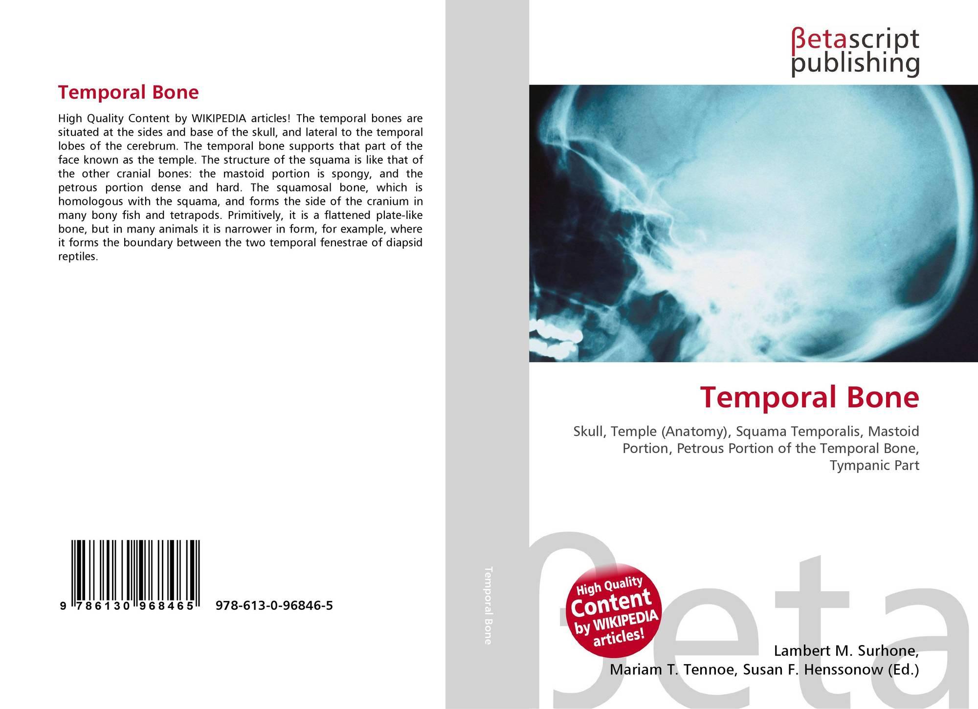 Temporal Bone, 978-613-0-96846-5, 6130968469 ,9786130968465