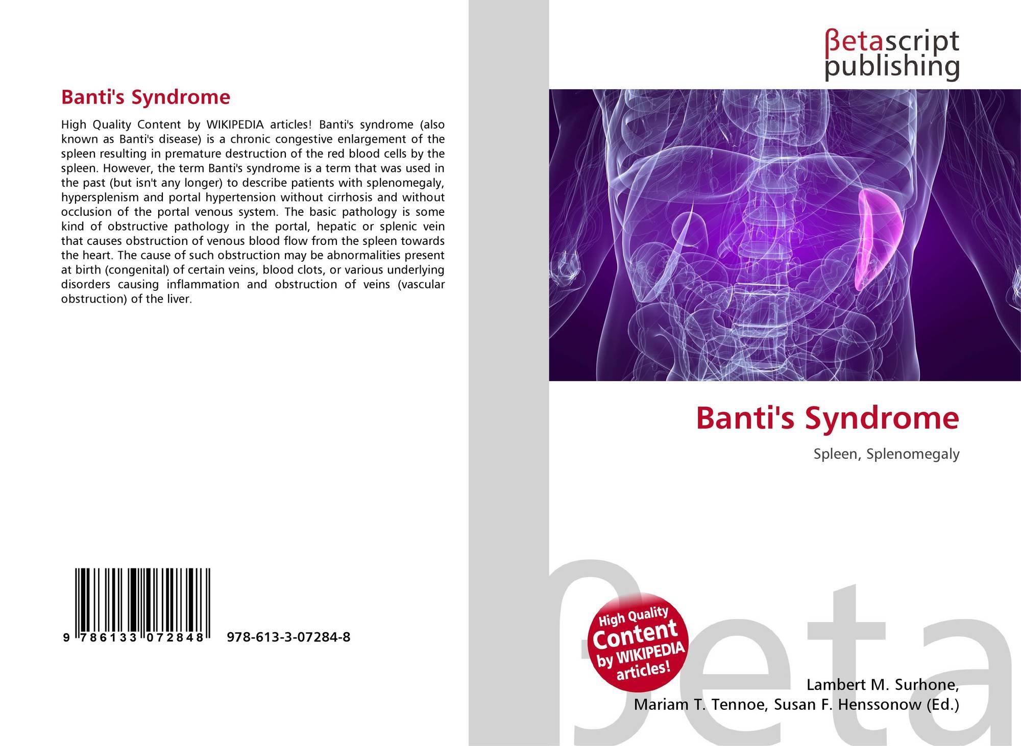 Синдром Банти