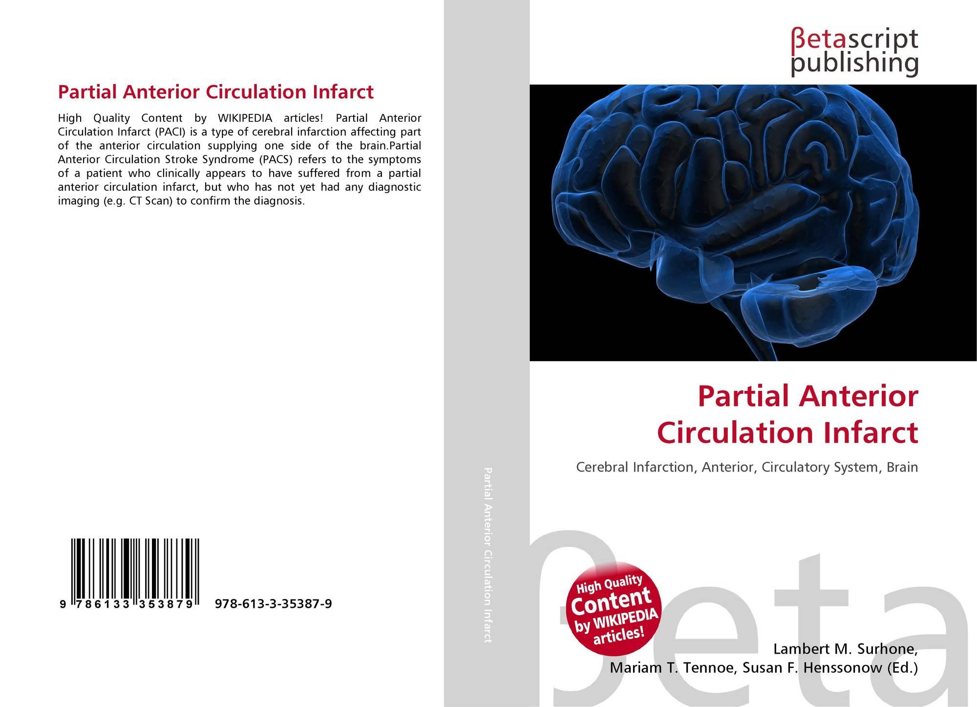 Partial Anterior Circulation Infarct, 40 40 40 4054087 40 ...